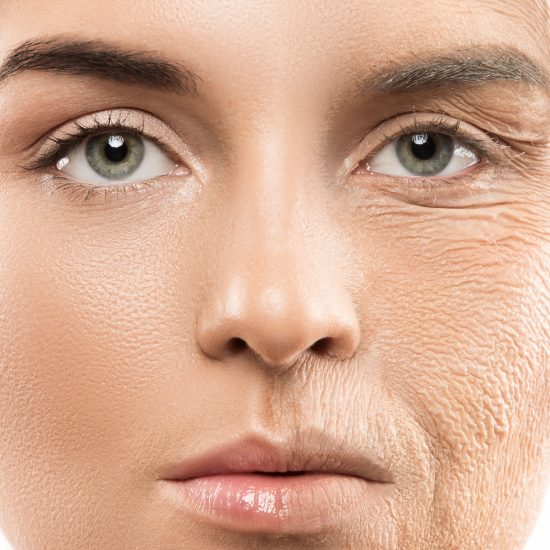 A female patient face before & after the treatment of anti-aging.